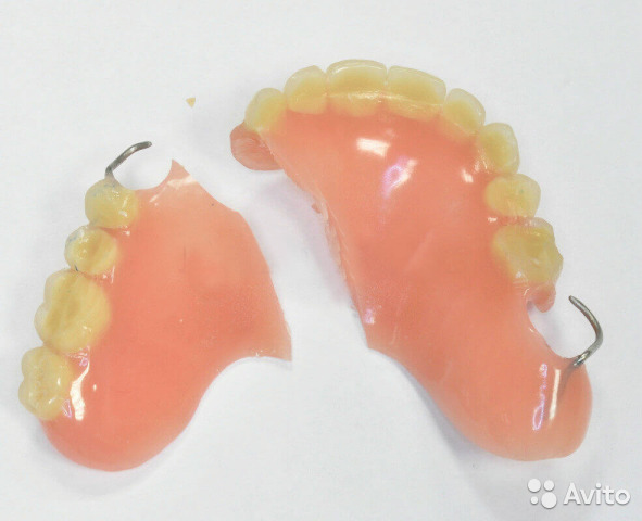 Гарантия на пломбу зуба и на протез по закону в РФ: сроки и виды обязательств стоматолога
